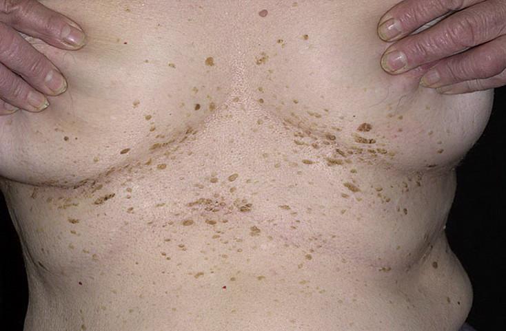 Народные средство лечение бородавок